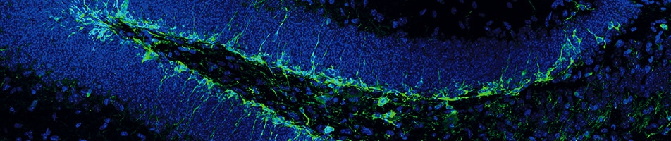 Adult Neurogenesis 2018 952x200px