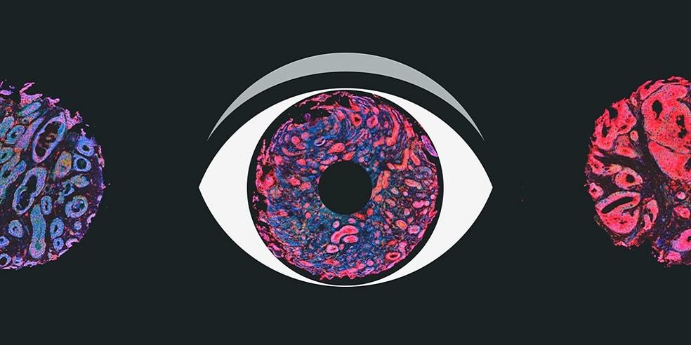 肿瘤标志物指南 – 轻松选择合适的生物标志物与IHC抗体