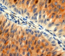 CK8 and Ki67 co-staining
