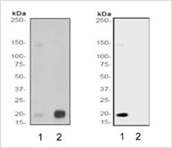 Histone H3 Acetylation Methylation RabMAb comparison
