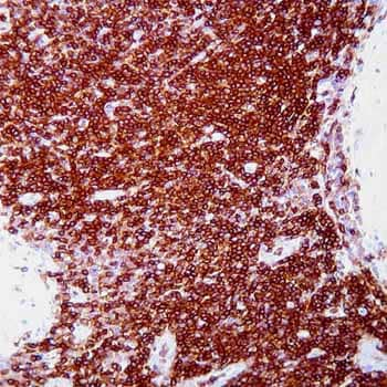 Immunohistochemistry (Formalin/PFA-fixed paraffin-embedded sections) - CD45 antibody [PD7/26/16 + 2B11] (ab781)