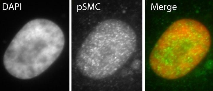 Immunocytochemistry - SMC1 (phospho S966) antibody (ab1276)