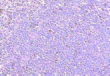 Immunohistochemistry (Formalin/PFA-fixed paraffin-embedded sections) - Chemokine Receptor D6 antibody (ab1658)