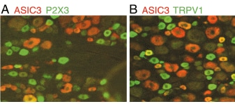 Immunohistochemistry (PFA perfusion fixed frozen sections) - P2X3 antibody (ab10269)