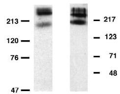 Western blot - Metabotropic Glutamate Receptor 6 antibody (ab10314)