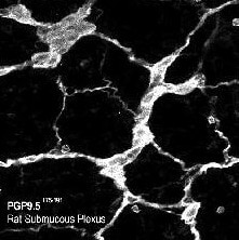Immunohistochemistry (PFA perfusion fixed frozen sections) - PGP9.5 antibody - Neuronal Marker (ab10410)