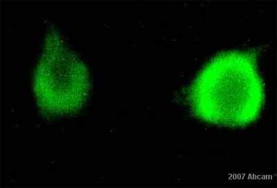 Immunocytochemistry/ Immunofluorescence - Met (c-Met) antibody (ab10728)