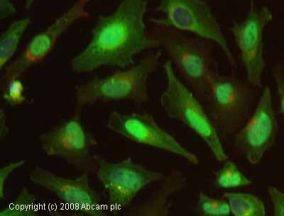 Immunocytochemistry/ Immunofluorescence - Cofilin antibody (ab11062)