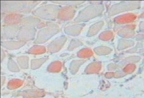 Immunohistochemistry (Formalin/PFA-fixed paraffin-embedded sections) - Slow Skeletal Myosin Heavy chain antibody [NOQ7.5.4D] (ab11083)