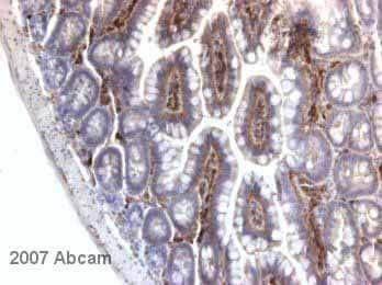 Immunohistochemistry (Formalin/PFA-fixed paraffin-embedded sections) - alpha Fodrin antibody [D8B7] (ab11755)