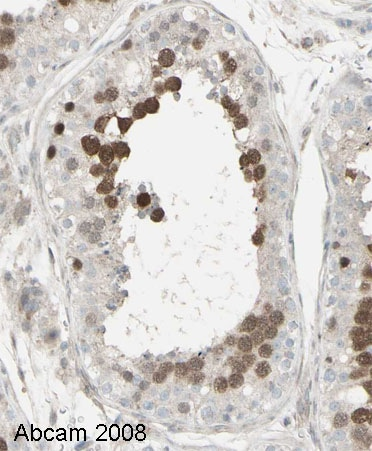 Immunohistochemistry (Formalin/PFA-fixed paraffin-embedded sections) - Geminin antibody (ab12147)