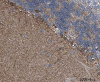 Immunohistochemistry (Formalin/PFA-fixed paraffin-embedded sections) - PCPTP1 antibody (ab12153)