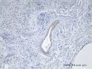 Immunohistochemistry (Formalin-fixed paraffin-embedded sections) - TEM7 antibody [197C193] (ab13667)