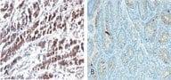- HtrA2 / Omi antibody [196C429] (ab13678)