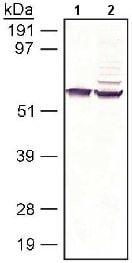 Western blot - RPE65 antibody (ab13826)