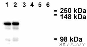 Western blot - Desmoglein 2 antibody [3G132] (ab14415)