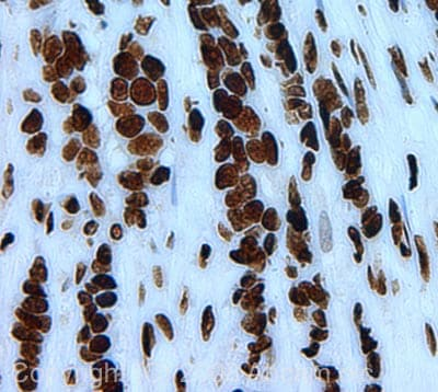 Immunohistochemistry (Formalin/PFA-fixed paraffin-embedded sections) - Anti-Histone H2A (phospho S1) + Histone H4 (phospho S1) antibody (ab14723)