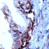 Immunohistochemistry (Formalin/PFA-fixed paraffin-embedded sections) - PSCA antibody, prediluted (ab15169)