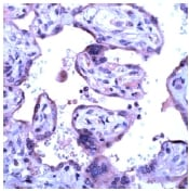 Immunohistochemistry (Formalin/PFA-fixed paraffin-embedded sections) - Anti-VEGF Receptor 3 antibody, prediluted (ab15295)
