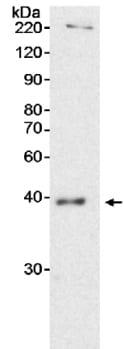 Western blot - QK1 antibody (ab15338)