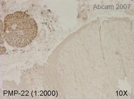 Immunohistochemistry (Frozen sections) - PMP22 antibody (ab15506)