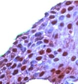 Immunohistochemistry (Formalin/PFA-fixed paraffin-embedded sections) - ROC1 antibody, prediluted (ab15517)