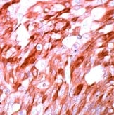 Immunohistochemistry (Formalin/PFA-fixed paraffin-embedded sections) - S100 antibody, prediluted (ab15521)