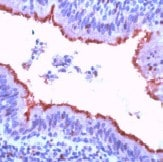 Immunohistochemistry (Formalin/PFA-fixed paraffin-embedded sections) - beta Tubulin antibody, prediluted (ab15569)