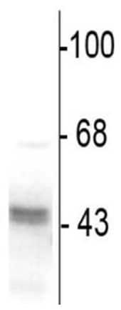 Western blot - Anti-GABA A Receptor gamma 2 antibody (ab16213)