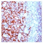 Immunohistochemistry (Formalin/PFA-fixed paraffin-embedded sections) - CD23 antibody [SP23] (ab16702)