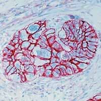 Immunohistochemistry (Formalin/PFA-fixed paraffin-embedded sections) - CD44 antibody [156-3C11] (ab16728)