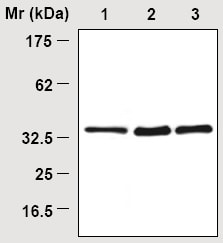 Immunoprecipitation - CSPS antibody [3F10] (ab16773)