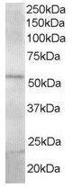 Western blot - FBXL2 antibody (ab17018)