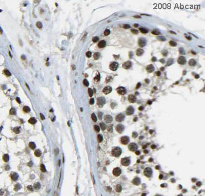 Immunohistochemistry (Formalin/PFA-fixed paraffin-embedded sections) - Histone H4 (mono methyl R3) antibody (ab17339)