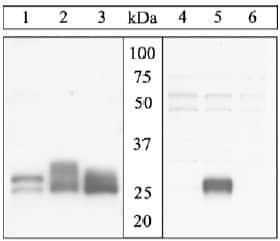 Western blot - Bim (phospho S65) antibody (ab17935)