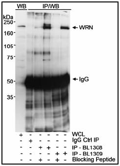 Immunoprecipitation - Werner's syndrome helicase WRN antibody (ab17987)