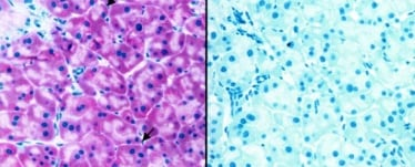 Immunohistochemistry (Formalin/PFA-fixed paraffin-embedded sections) - ABCA1 antibody [AB.H10] (ab18180)