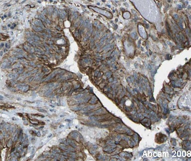 Immunohistochemistry (Formalin/PFA-fixed paraffin-embedded sections) - FOXK1 antibody (ab18196)