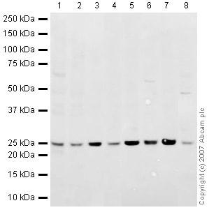 Western blot - Rab5 antibody - Early Endosome Marker (ab18211)