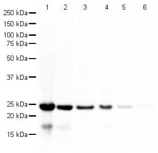 Western blot - PARK7/DJ1 antibody (ab18257)