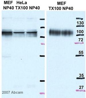 Western blot - Anti-LAMP2A antibody (ab18528)