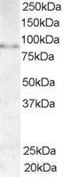 Western blot - AKAP3  antibody (ab19046)