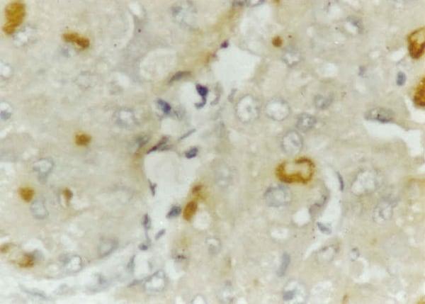 Immunohistochemistry (Formalin/PFA-fixed paraffin-embedded sections) - Anti-Hepatitis C Virus NS4 antibody [5D4/10E7] (ab19048)