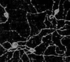 Immunocytochemistry/ Immunofluorescence - Melanopsin antibody (ab19306)