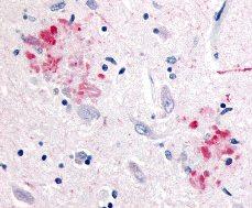Immunohistochemistry - Amyloid Precursor Protein antibody (ab2072)