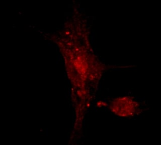 Immunocytochemistry/ Immunofluorescence - Cellubrevin antibody (ab2102)