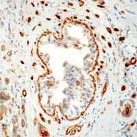 Immunohistochemistry (Formalin/PFA-fixed paraffin-embedded sections) - Transglutaminase 2 antibody [CUB 7402] (ab2386)