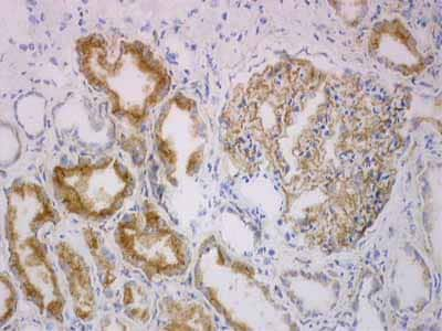 Immunohistochemistry (Frozen sections) - Renal Cell Carcinoma (gp200) antibody [RC38] (ab2489)