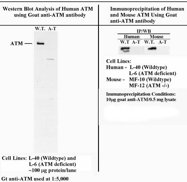 Western blot - ATM antibody (ab2631)