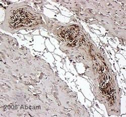 Immunohistochemistry (Formalin/PFA-fixed paraffin-embedded sections) - FKBP12 antibody (ab2918)
